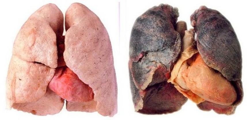 smoke_lungs