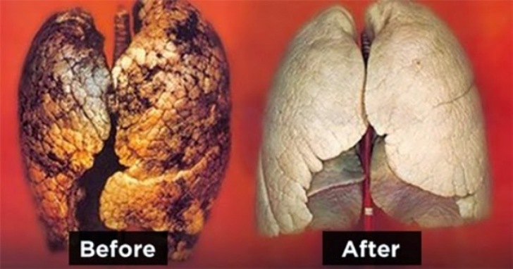 5 Ways To Cleanse and Detox The Lungs thumbnail